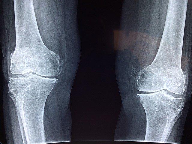 prześwietlenie kolana